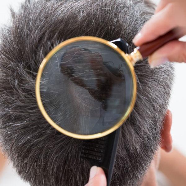 Îngrijirea scalpului și provocările vieții contemporane 1