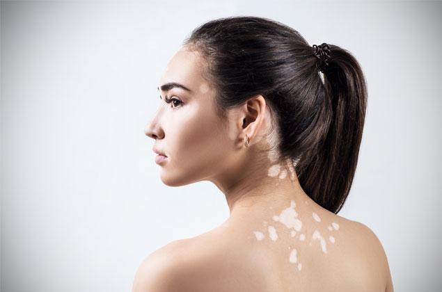 Tulburările de pigmentare ale pielii și factorii asociați 2
