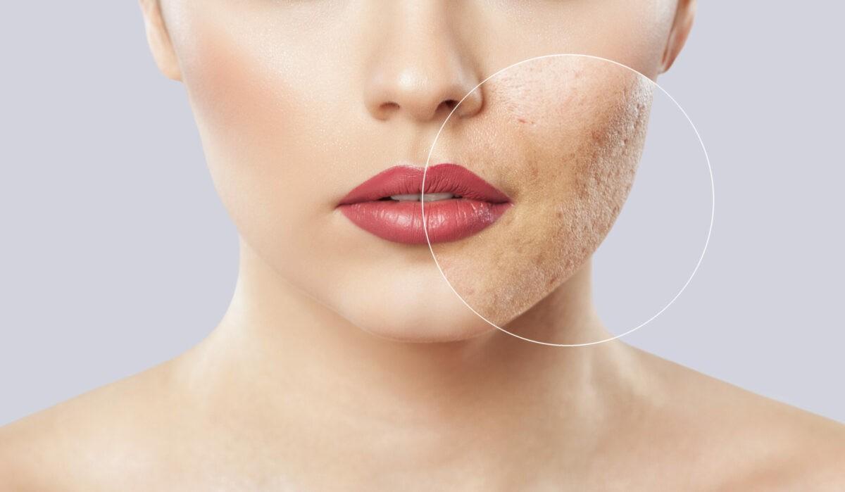Bolile de piele 6