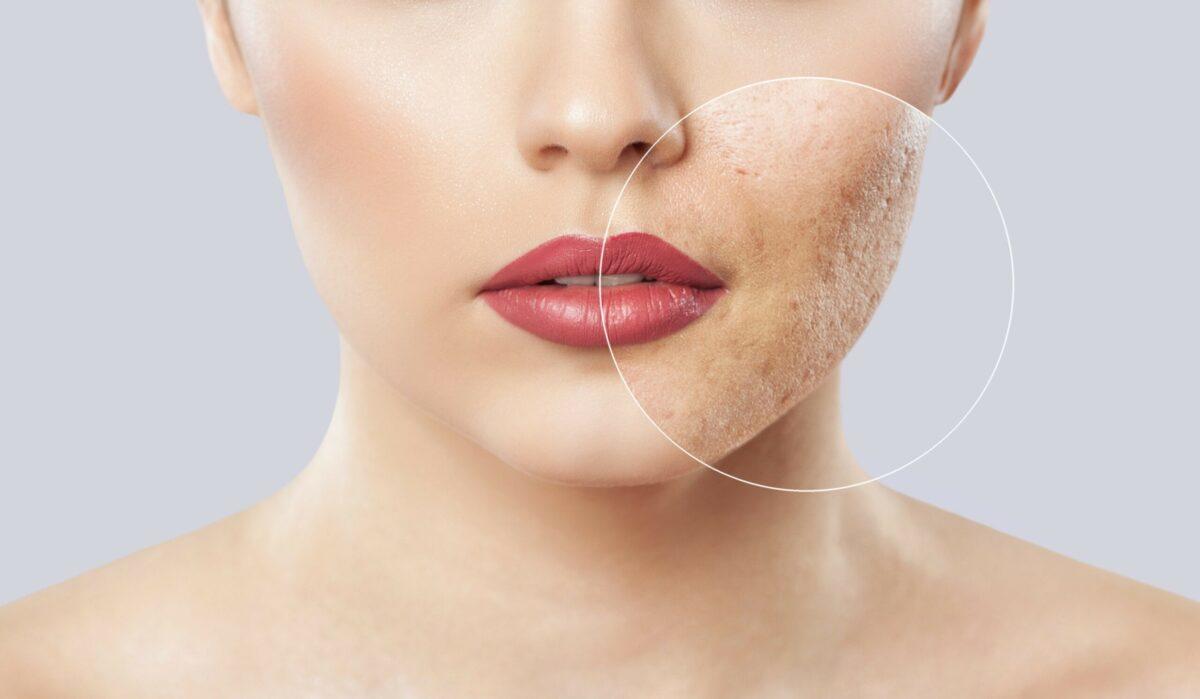 Cum scăpăm de porii dilatați? 5